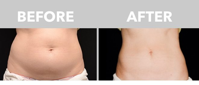 Who is A Good Candidate for a CoolSculpting Procedure?