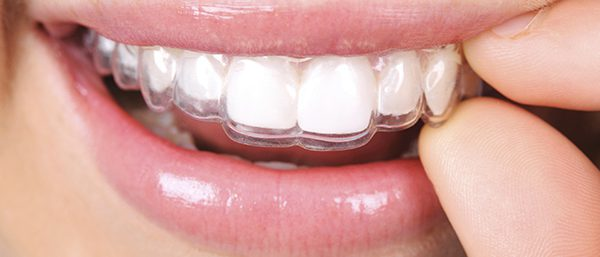 Differences Between Invisalign Treatment and Traditional Braces