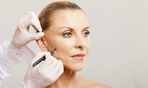 Reasons Why You Need to Consider Fillers