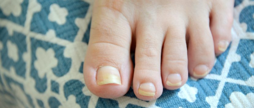 Prevent Toenail Fungus Infection