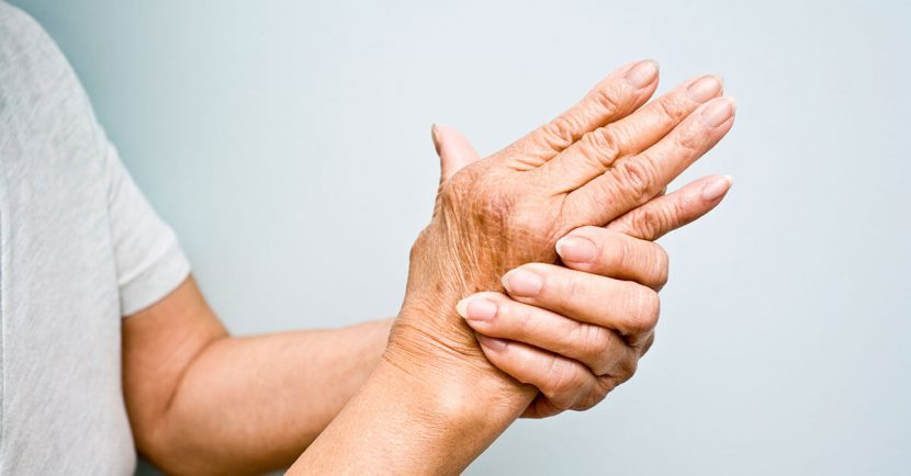How to Manage Rheumatoid Arthritis