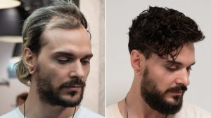 What to look forward to in selecting the professional hair transplant surgeon