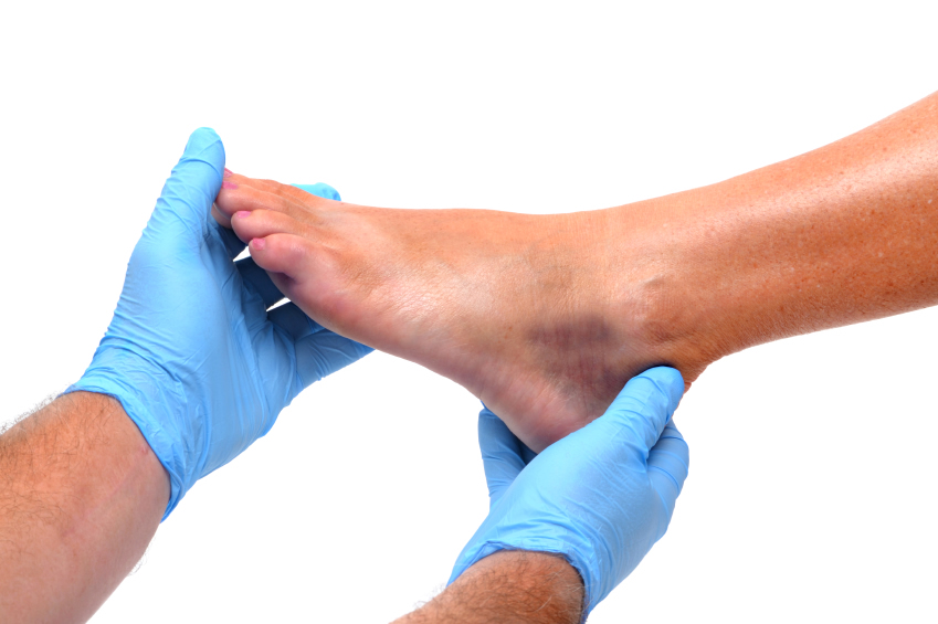 5 Possible Reasons for Your Foot Discoloration