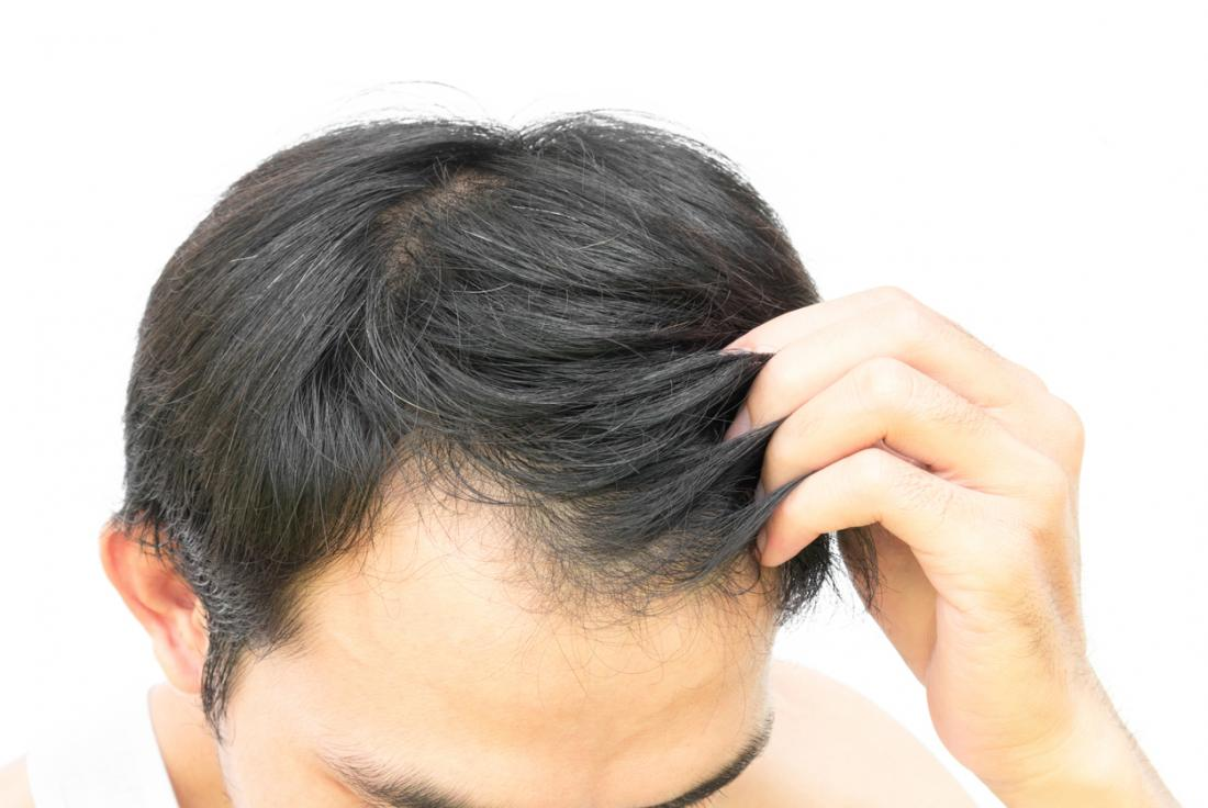 Restore Your Natural Hair with Hair Restoration Specialists in Sarasota, FL