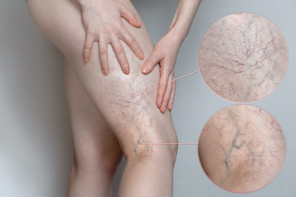 Varicose Veins: Simple Tips to Liberate You From This Unsightly Situation