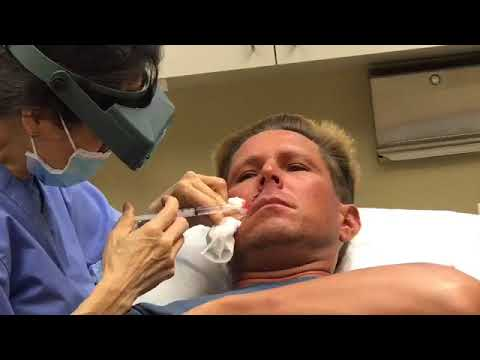 Did You Know About Mohs Surgery?