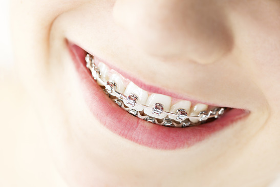 Orthodontic Treatment Options to Give Your Child a Lasting Beautiful Smile