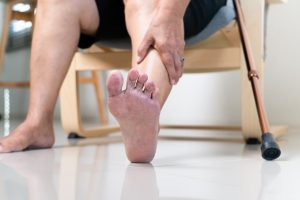 dry skin and woman foot