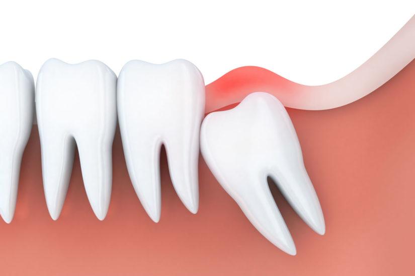 Ways to Relieve Wisdom Teeth Pain