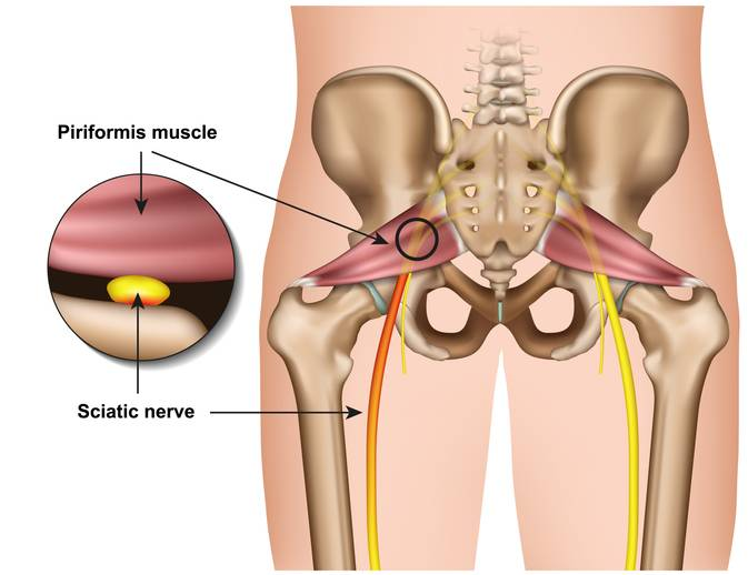 How is Sciatica Disorder Diagnosed?