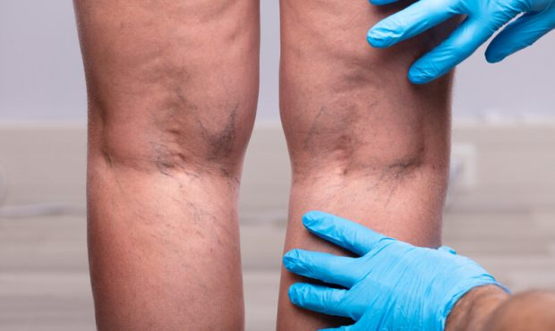 What You Should Know About Varicose Veins