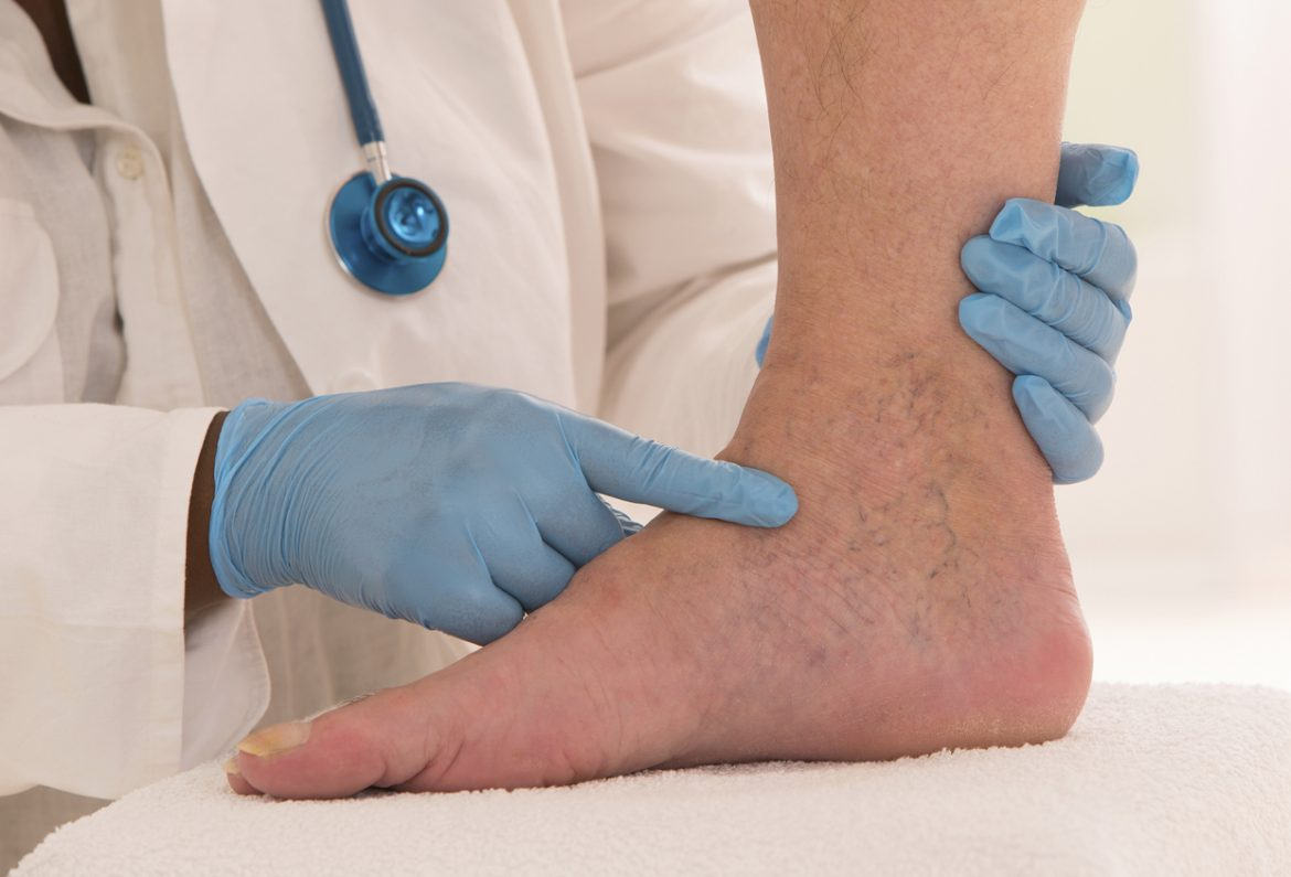 How to Cope with Chronic Venous Insufficiency