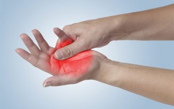 About Peripheral Neuropathy